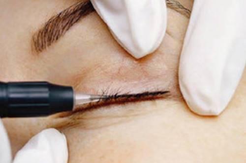 pigmentation-des-oberen-lidstrichs