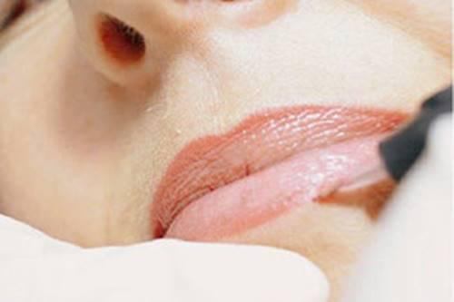 pigmentation-der-lippenkontur
